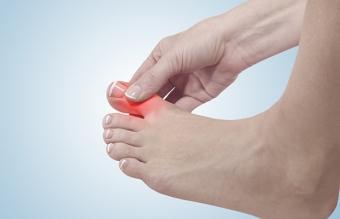 Как лечить ушиб пальца на ноге в домашних условиях