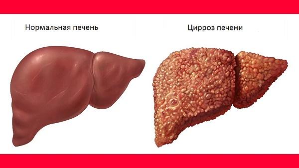 Причины цирроза печени у мужчин
