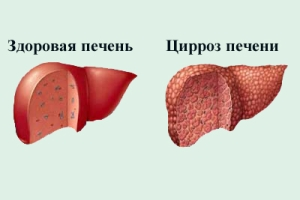 Что такое цирроз печени